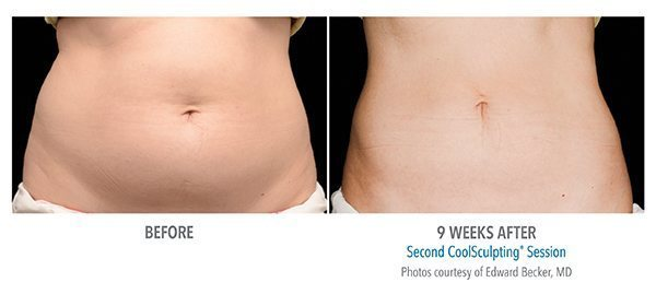 princeton-coolsculpting-before-after