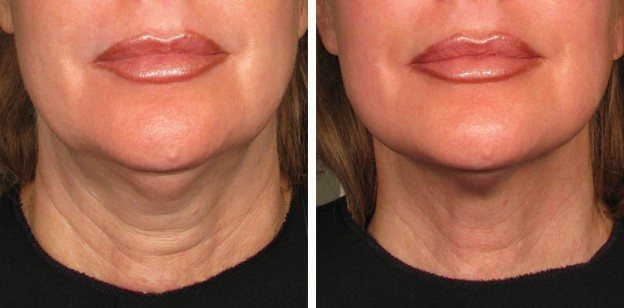 ultherapy_neck-624x308